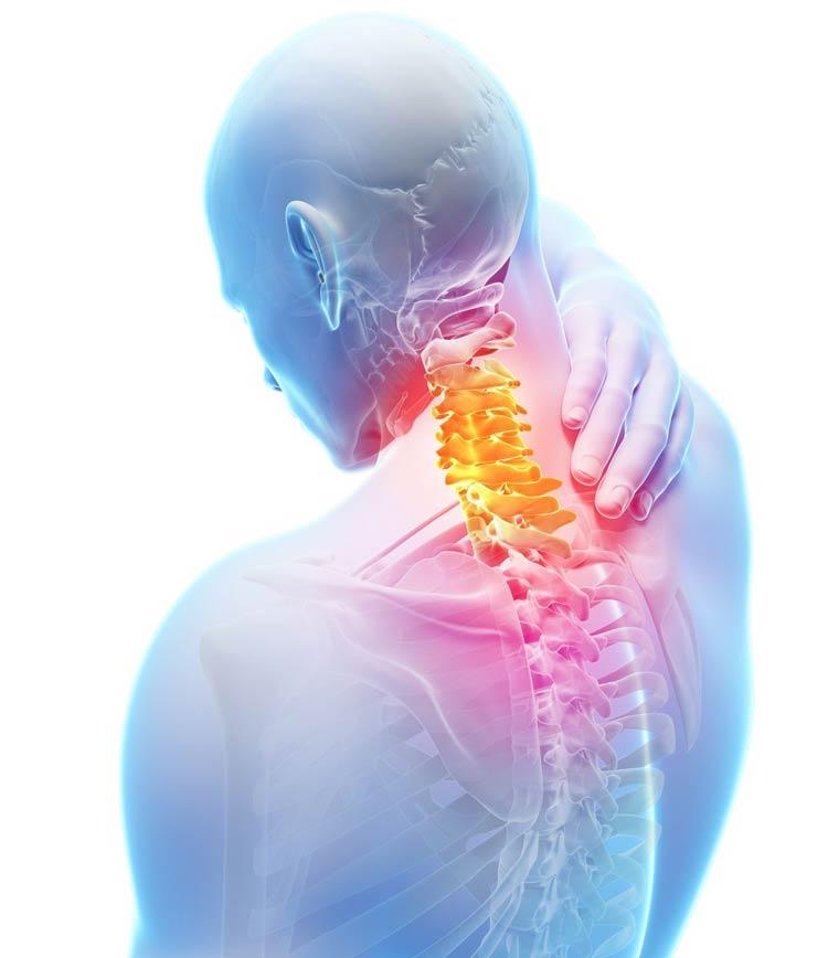 Neck Pain illustration